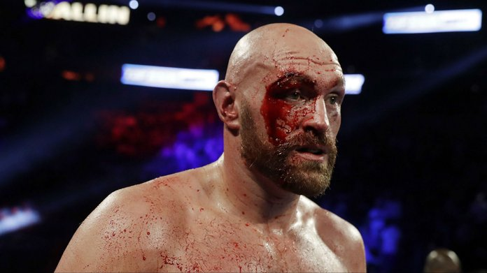 Tyson Fury Retains Favoritism For Deontay Wilder Re-match